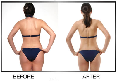 brazilian butt lift results