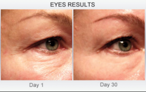Derm Exclusive Eye Results