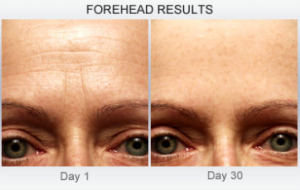 Derm Exclusive forehead results