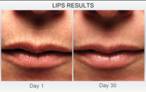 Derm Exclusive Lip Results